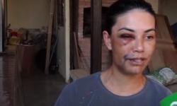 VEJA VÍDEO: (conteúdo forte) motorista de aplicativo conta como foi espancada por 4 ladrões em MT