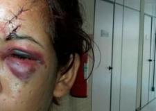 VEJA VÍDEO: Mulheres contam histórias reais de agressão em MT