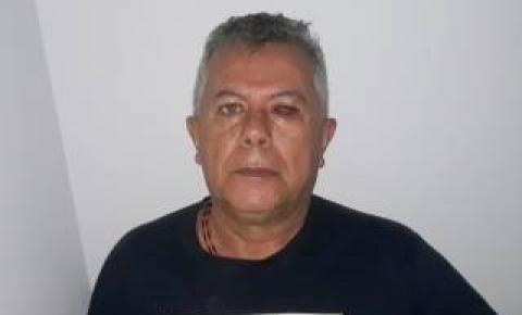 Radialissta fere o próprio olho durante acidente doméstico no Araguaia